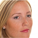 Hyperpigmentation- Seven Easy Ways to Treat So It Never Comes Back
