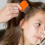 Why You Should Hire Professional Lice Removal Specialists to Help You Deal with Your Head Lice Infestation