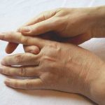Orthopaedics: Understanding the cause and cure for trigger finger