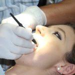 Dental Veneers vs. Lumineers: What You Need to Know?