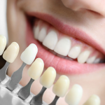 5 Reasons Why Tooth-Colored Fillings is Better Option For Your Family