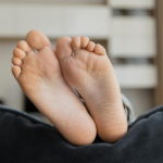 Things you should know about Bunions